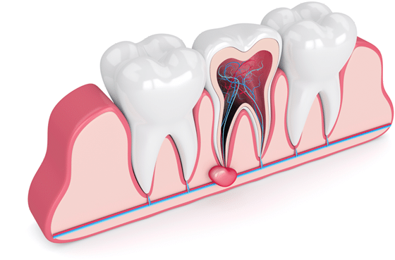 Why do a root canal?