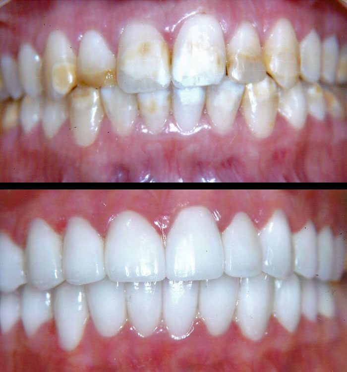 Veneers – Before and After